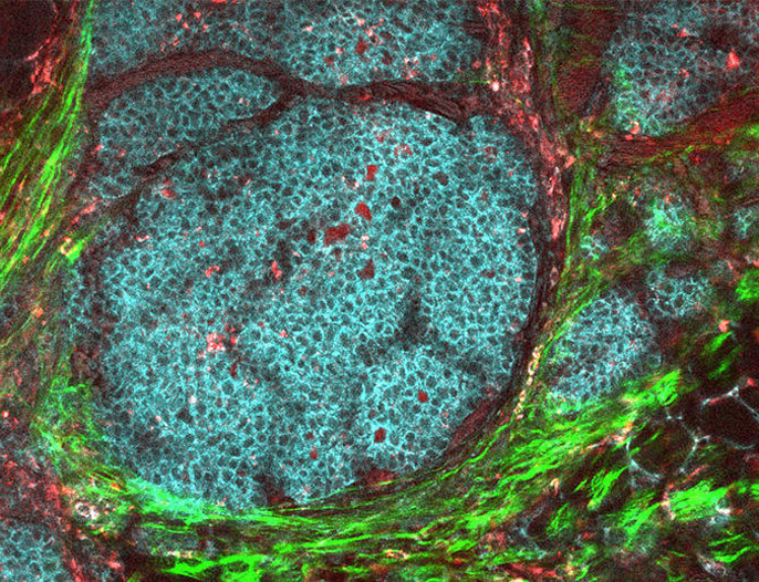 Breast cancer tumor in its microenvironment